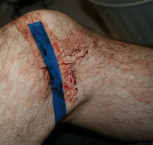 My leg during cleanup at the hospital. Notice the professional electrical tape bandage still covering most of the wound.